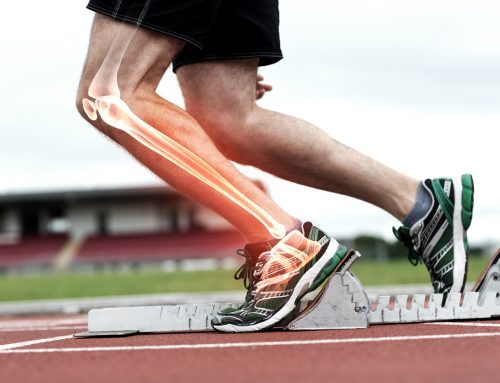 You Tweaked Your ACL – Now What?
